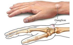 Ganglion kezelése, eltávolítása