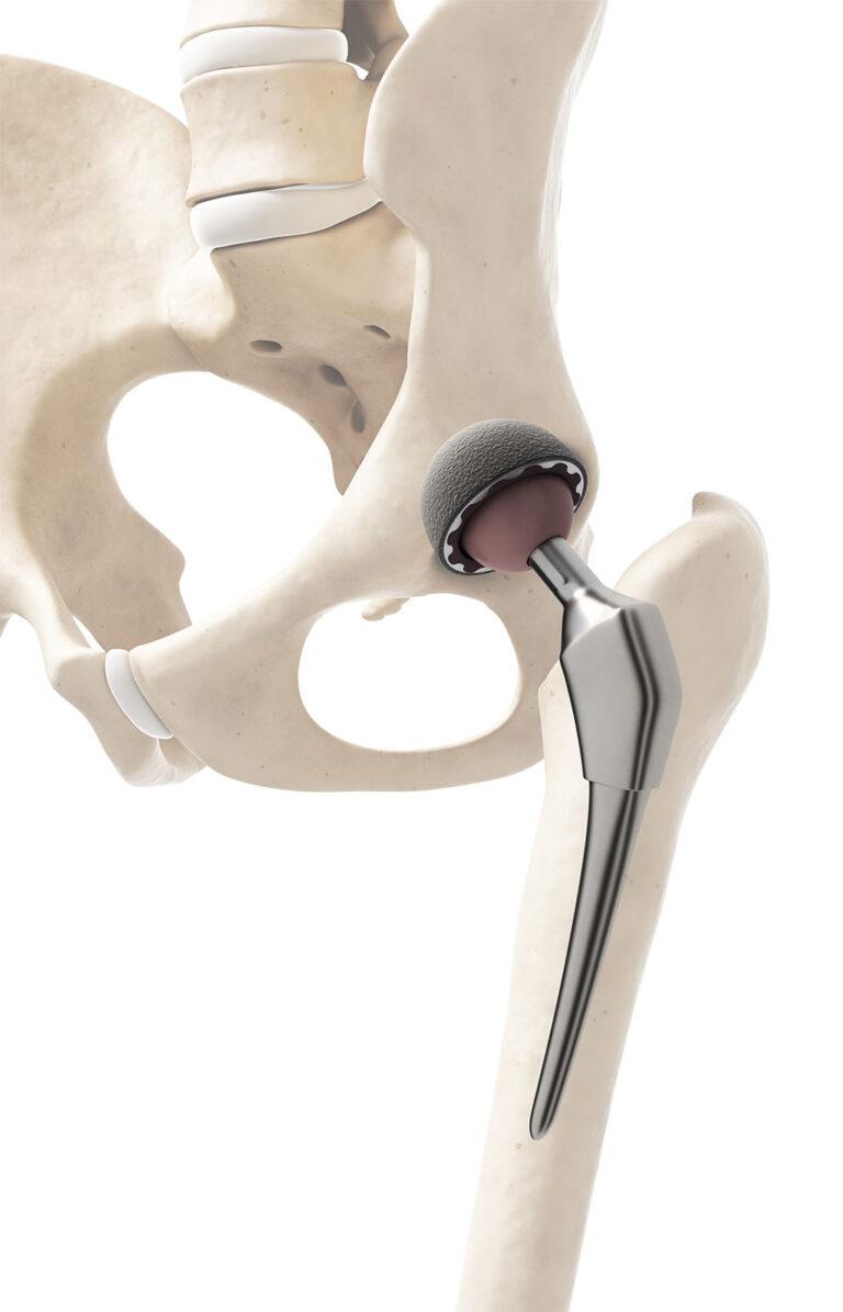 Csípőprotézis-beültetés